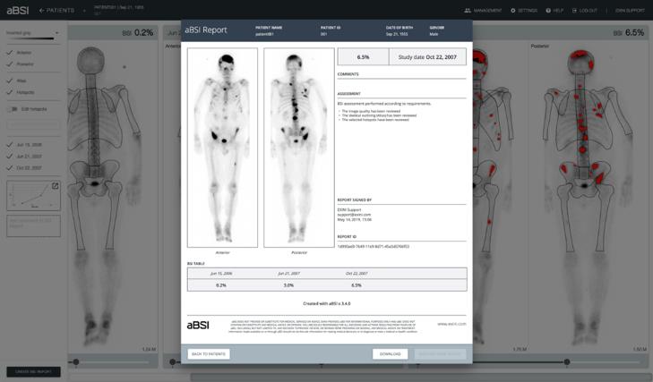 PRESS RELEASE for Exini Diagnostics